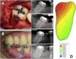 Biomechanical effect of selective osteotomy and corticotomy on orthodontic molar uprighting