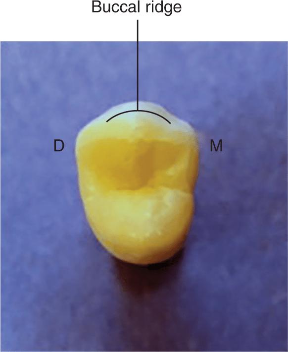 A photo shows a premolar tooth.