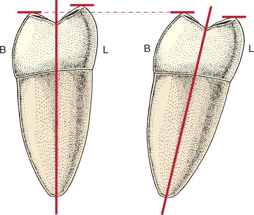 Two illustrations show a mandibular second molar in different positions.