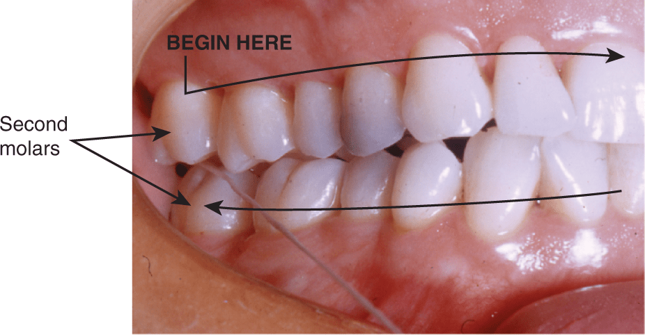 A photo shows the maxillary and mandibular teeth on the right of the mouth.