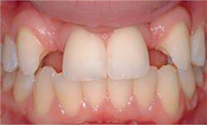 A photo shows the front teeth in the mouth.