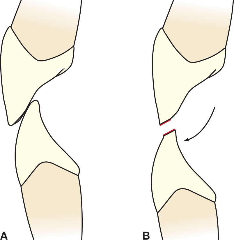 An illustration shows the ideal position of a maxillary and mandibular incisor when posterior teeth are biting tightly. An illustration shows the direction of movement of mandibular incisors when the mandible moves forward.