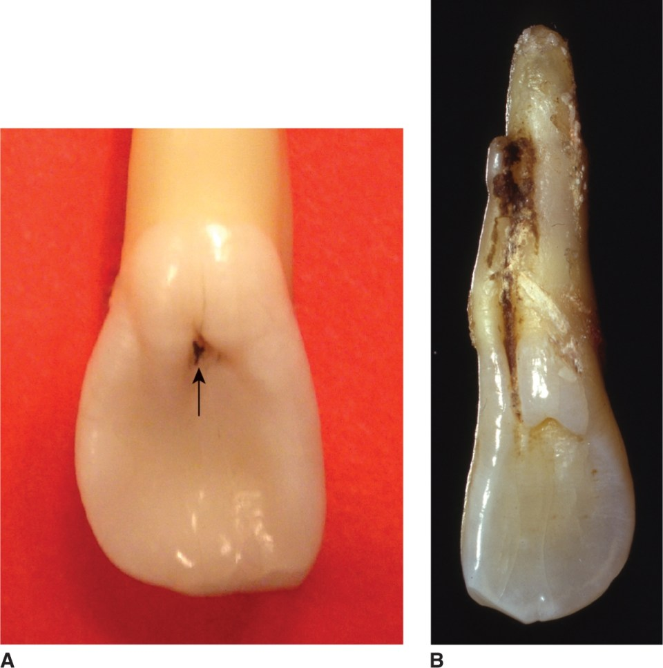 A photo shows a maxillary lateral incisor. A photo shows an incisor with disease.