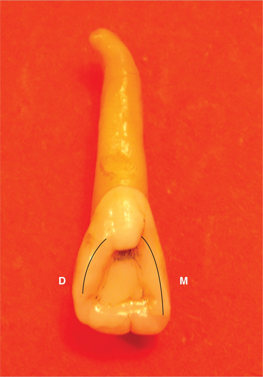 A photo shows a left maxillary lateral incisor.