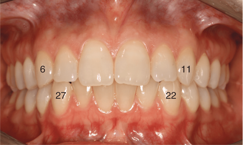 A photo shows the adult dentition in the mouth with the four canines labeled with their universal numbers.