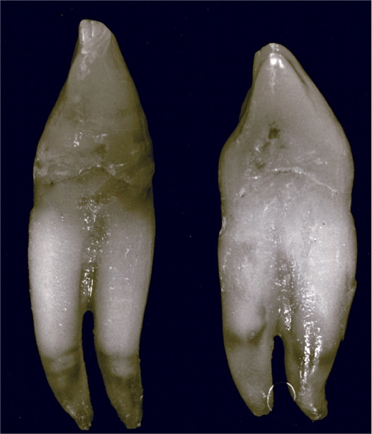 A photo shows the two unusual mandibular canines.