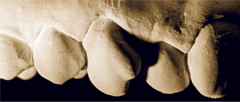 A photo shows the maxillary right canine.