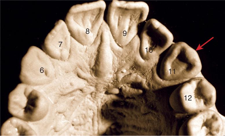 A photo shows the maxillary left canine.
