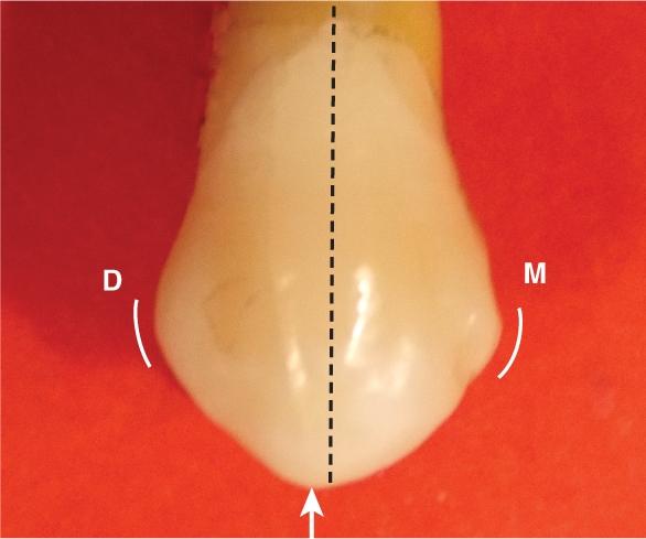 A photo shows the maxillary first premolar.