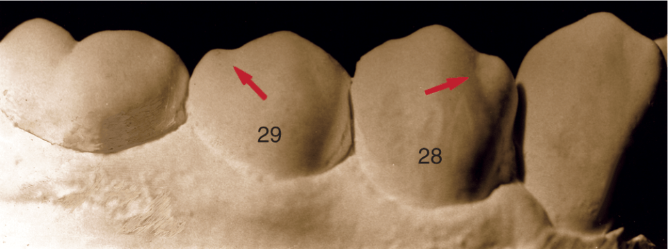 A photo shows the mandibular right first and second premolars.