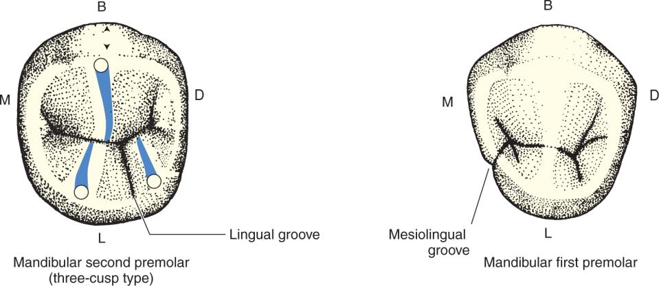 An illustration shows the three-cusp-type mandibular second premolar and mandibular first premolar.