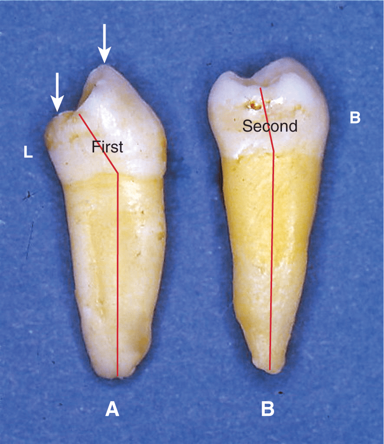 A photo shows the mesial view of the two mandibular premolars with lingual tilt of the crown.