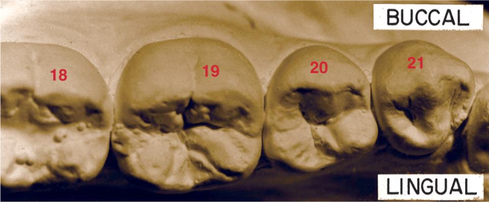 A photo shows the mandibular left second premolar three-cusp type.