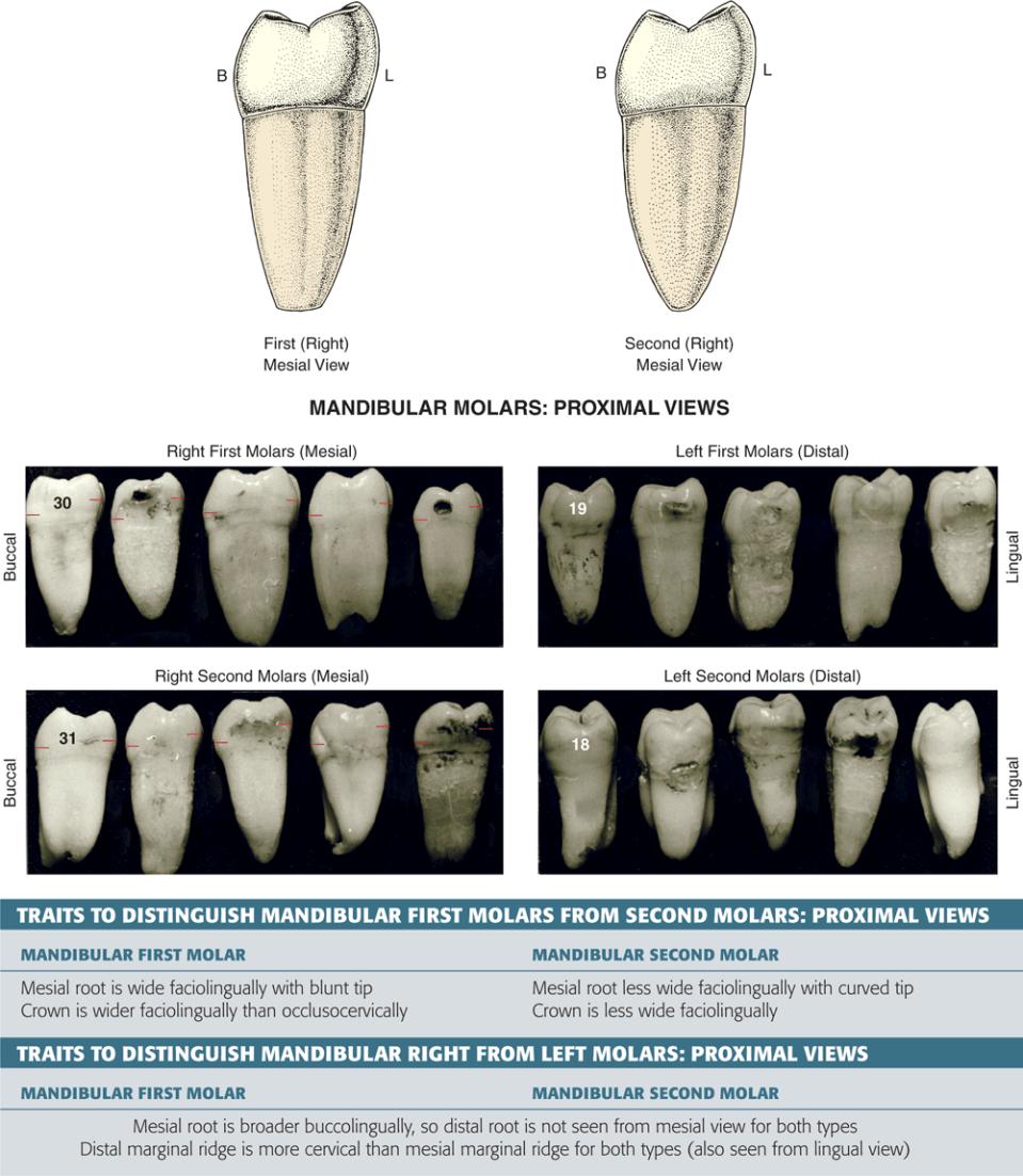 A photo shows the mesial view of a mandibular first molar.