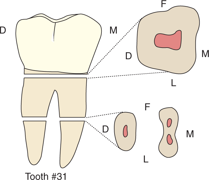 An illustration and photos show the occlusal views of the mandibular molars and their traits.