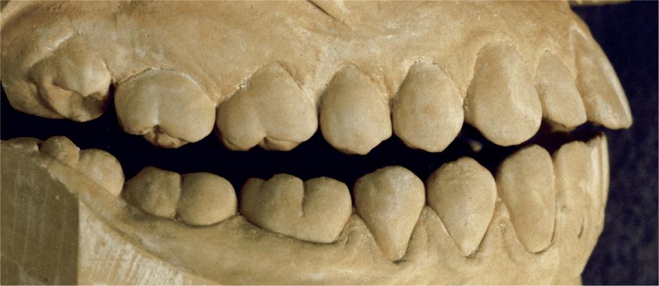Four photos show the occlusal views of mandibular and maxillary third molars.