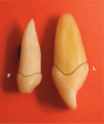 Traits of most anterior and posterior primary teeth compared to permanent teeth
