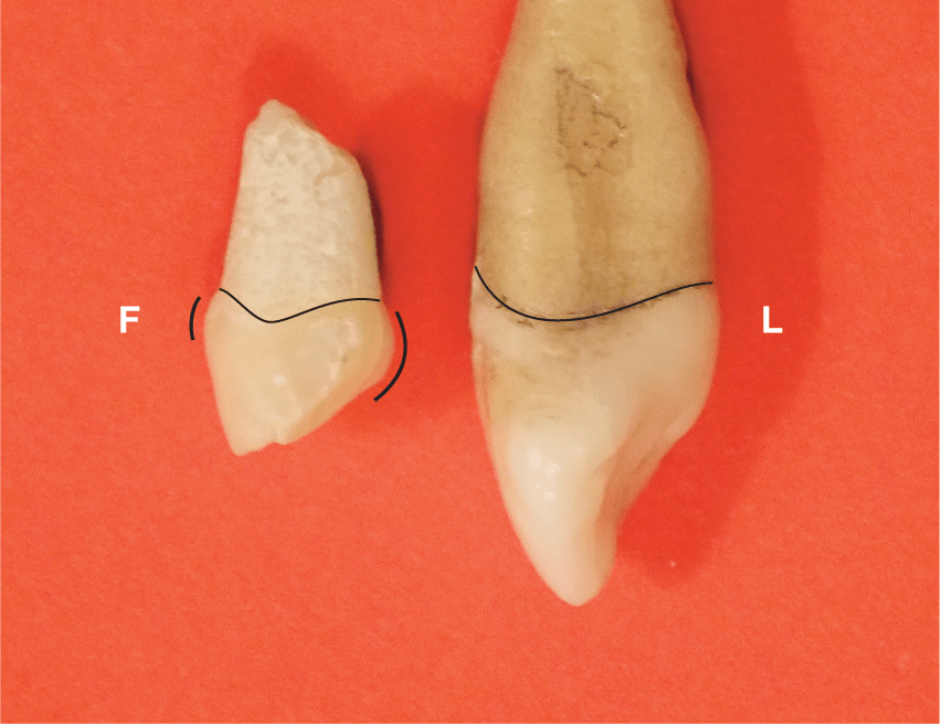 A photo shows a smaller and lighter colored maxillary canine that has a small root and a small crown with cervical bulges labeled as F next to a larger and darker colored maxillary canine that has a thick and long root and a crown that is curved at the bottom is labeled as L.