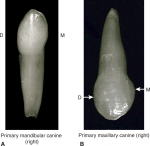 Class and type traits of primary anterior teeth