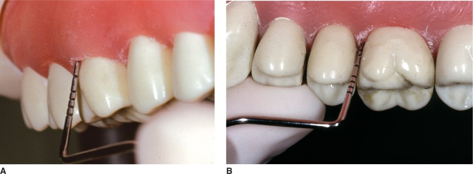 Photos A and B show periodontal probe placement technique.