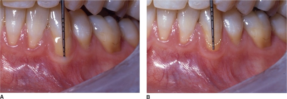 Photos A and B show clinical attachment loss.