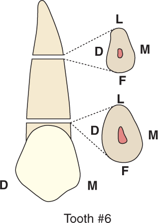 An illustration shows tooth #6, the maxillary canine and its cross section. The cervical cross section is broad labiolingually and appears ovoid.