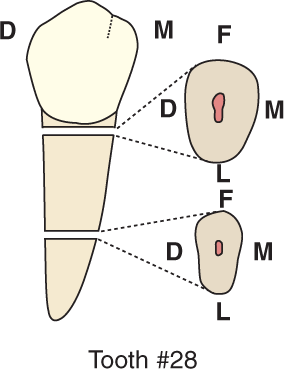 An illustration shows tooth #28, the mandibular first premolar and its cross section.