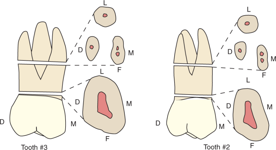 An illustration shows tooth #2 and tooth #3, the maxillary first and second molars and their cross section.