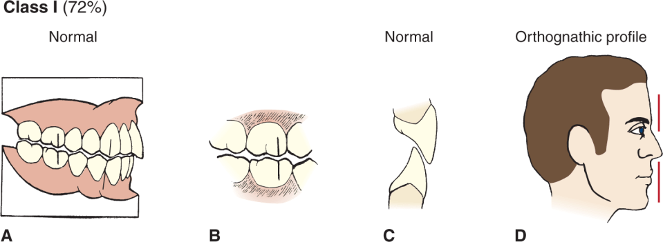 Illustrations A, B, C, and D show the angle's class 1 occlusion, which is 72 %.