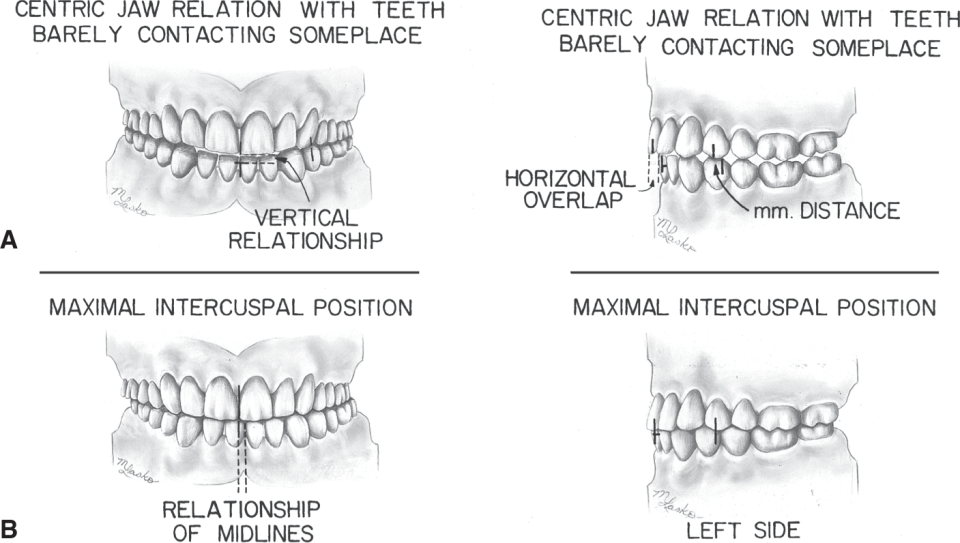 Illustrations A and B show the Maximal intercuspal position (MIP) compared to centric jaw relation.