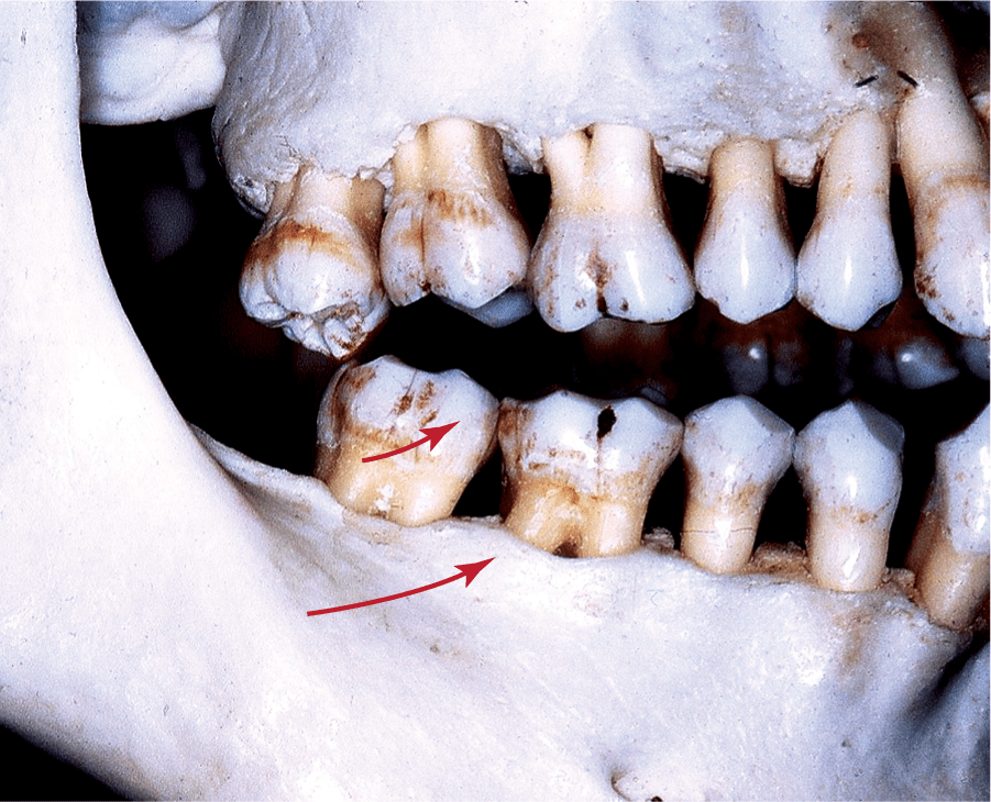 An image shows the centric prematurity in a set of teeth.