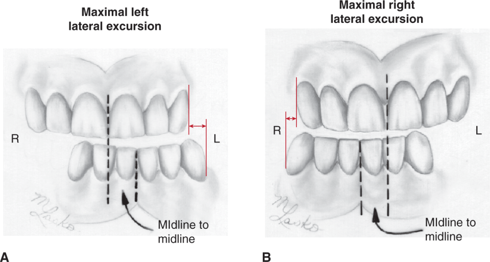 Illustrations A and B show the Lateral jaw movements of the mandibular moved as far as possible to the left and right.