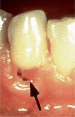 Overview of dental decay (carious lesions)