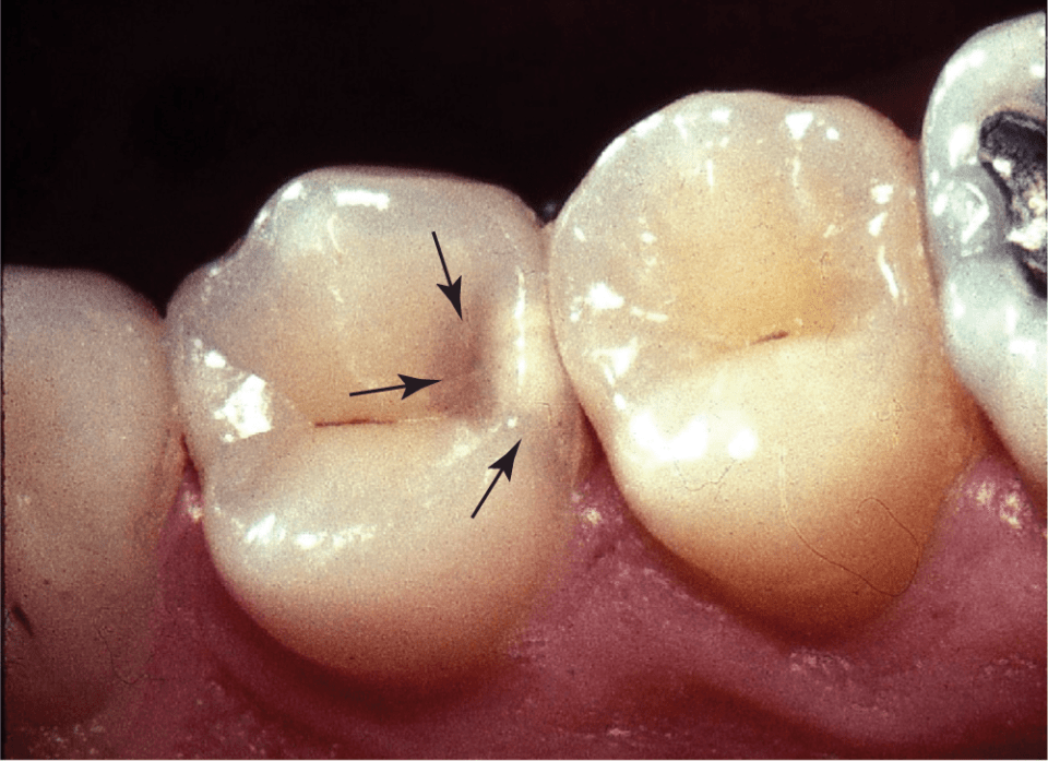 A photo shows a suspected class II caries when there is a change in the area of the marginal ridge over the proximal contact of the posterior tooth.