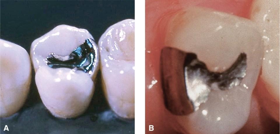 Two photos, A and B, show Class II amalgam restorations.