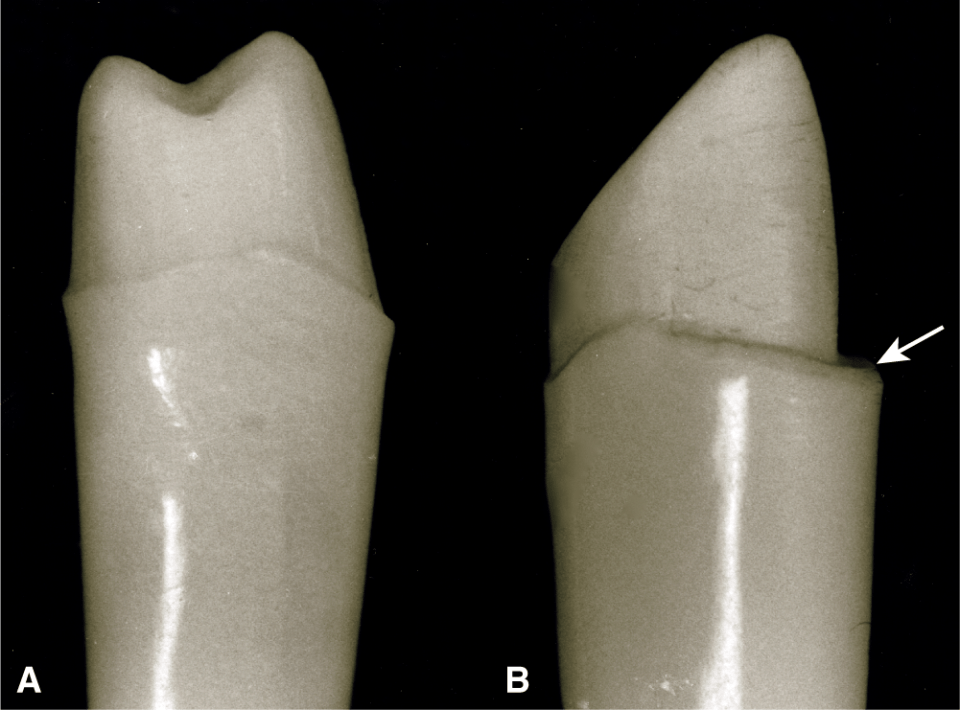 Photos A and B show the proximal views revealing crown preparations with their facial surface toward the right.