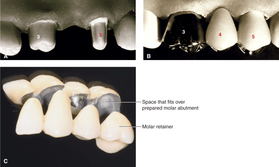 Photos A, B, and C show fixed dental prosthesis.