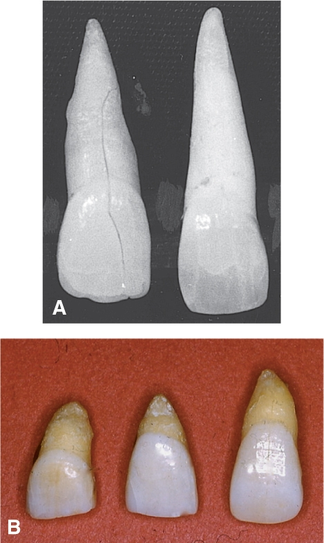 Photo A shows the macrodontia of two very long incisors, each 34 m m long. Photo B shows the microdontia of three very short central incisors with dwarfed roots.