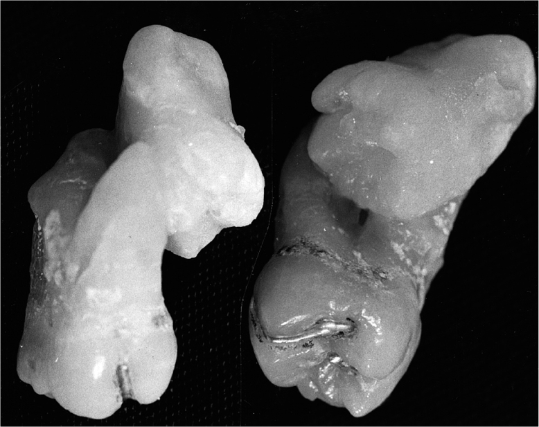 A photo shows the cementum of a maxillary first molar is joined to the cementum of an adjacent second molar. Left: Lingual view. Right: Disto-occlusal aspect with the buccal toward the right.