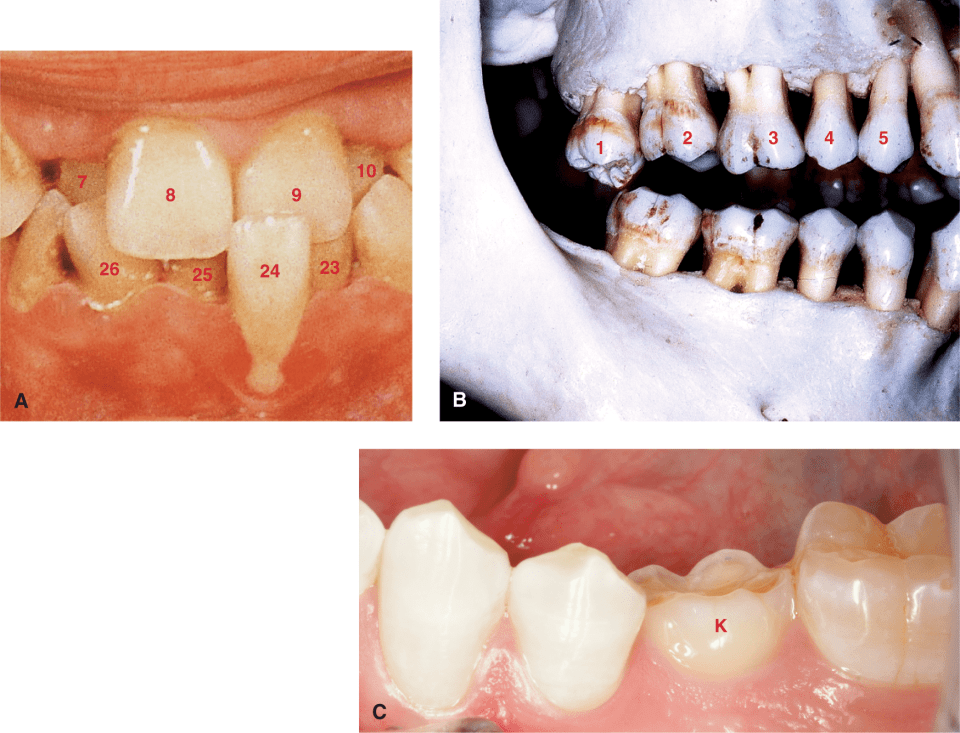 Photo A shows tooth #24 is in labioversion and teeth #7 and #10 are in linguoversion. Photo B shows tooth #1 is in supraocclusion and is extruded. Photo C shows tooth K, a retained primary tooth, is in infraocclusion.
