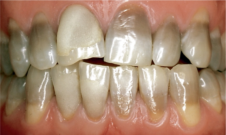 Photo A shows teeth with the appearance of yellow to gray-brown horizontal bands across the crowns.