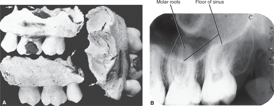 Illustration A shows the three views of part of the left alveolar process. Image B shows the radiograph of the maxillary molar region.