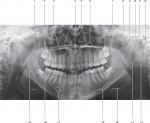 Structures Visible on a Panoramic Radiograph