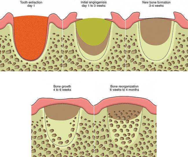 Gum Graft Healing Stages