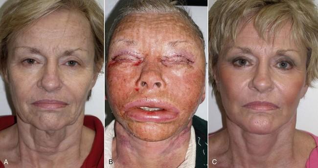 10: Facial Implants | Pocket Dentistry