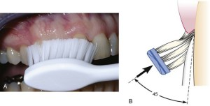 45: Plaque Biofilm Control for the Periodontal Patient | Pocket Dentistry