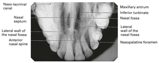 Lateral Fossa In Dental Radiography wwwimagenesmycom