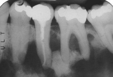16 Nonodontogenic Intraosseous Lesions  Pocket Dentistry