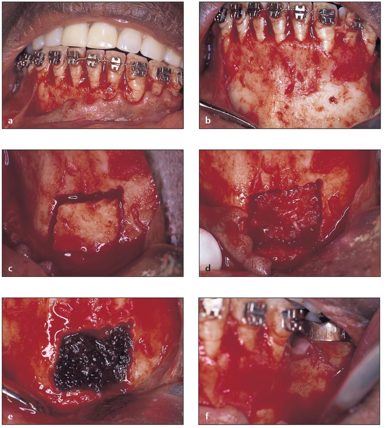 6  Harvesting Bone from the Mandibular Symphysis  Pocket