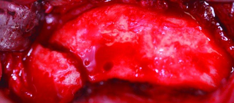 13 Mandibular Fractures  Pocket Dentistry